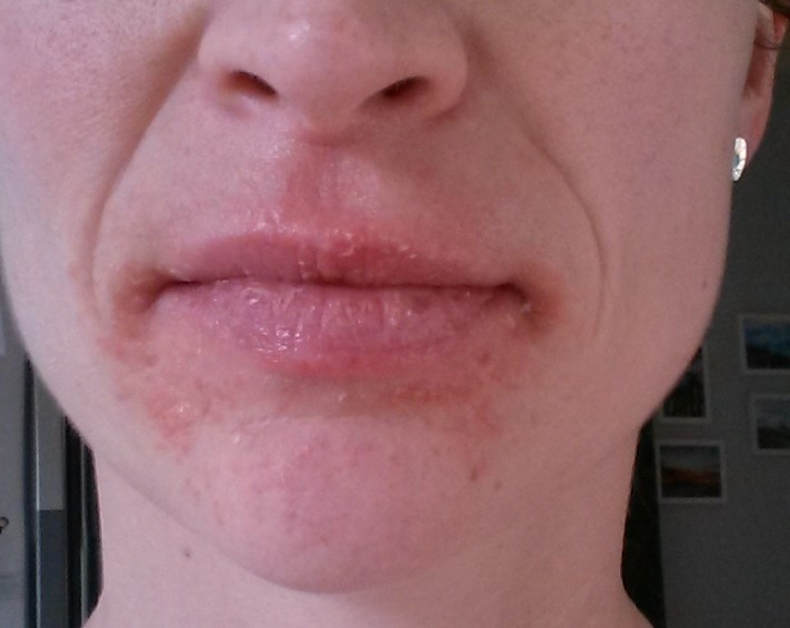 Dry patches on face around mouth